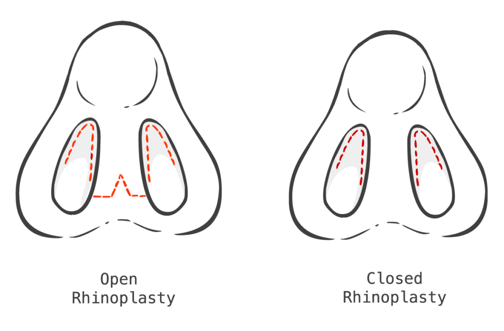 open vs closed